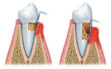 歯周病進行の様子